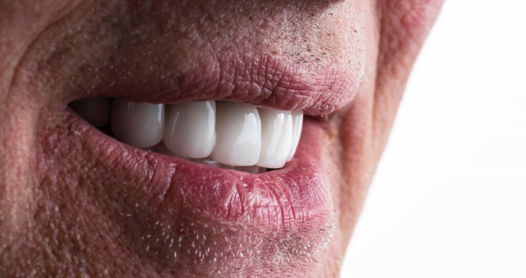 גבר לאחר הלבנת שיניים