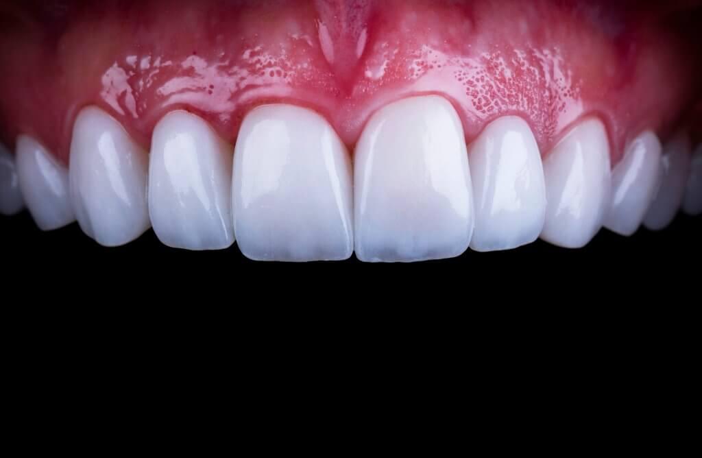 אחרי ציפויי שיניים