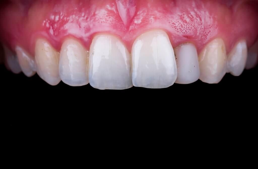 לפני ציפויי שיניים