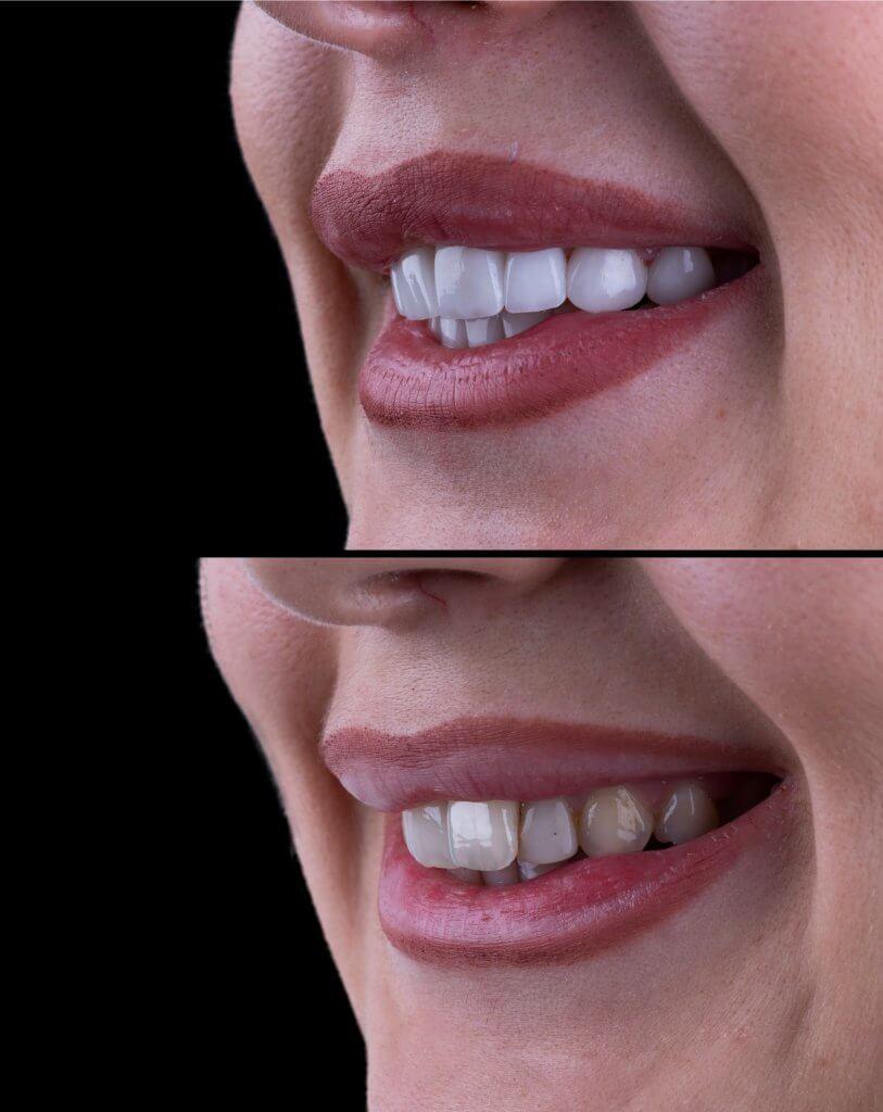 ציפויי שיניים לפני ואחרי