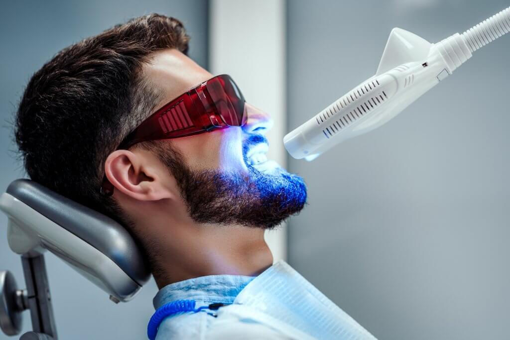 הלבנת שיניים מרפאתית